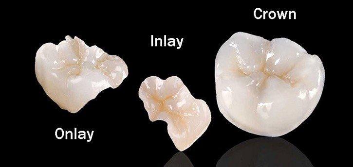 Onlay Crown San Antonio Dentist
