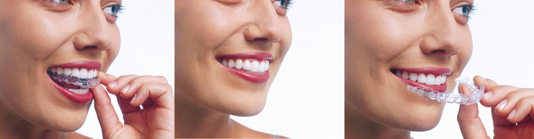 invislign-ortodoncia-invisible