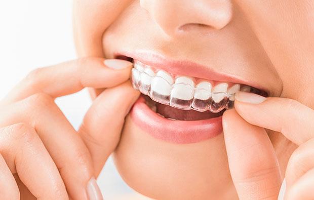 ortodoncia-invisalign-coronas-dentales