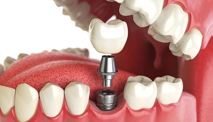 Implantes sin cirugía, Oliver Coll