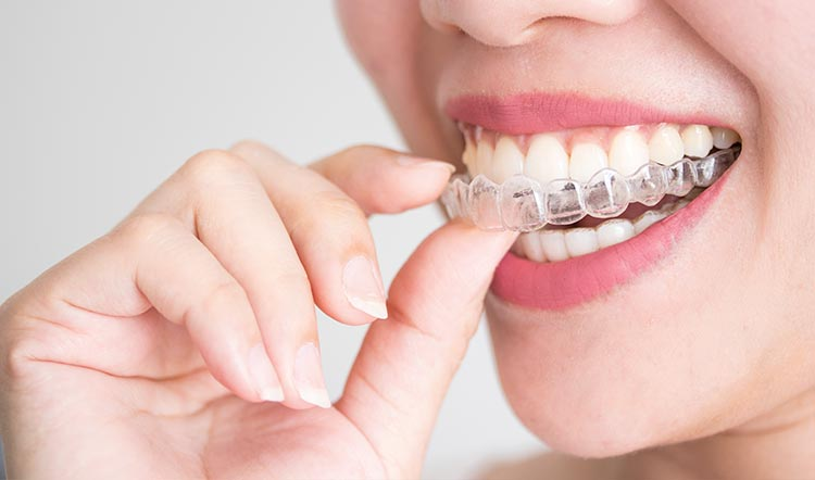 Alinear los dientes sin brackets