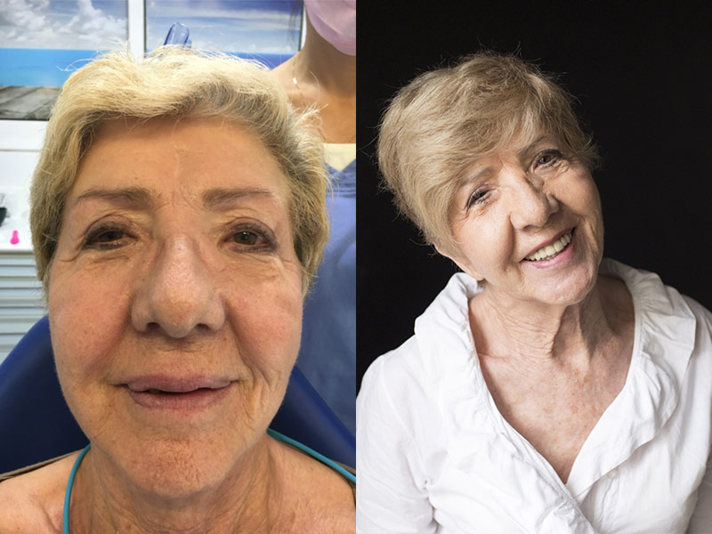 Rehabilitación completa con implantes dentales