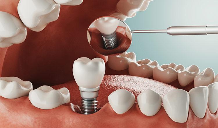 Proceso para colocar implantes dentales