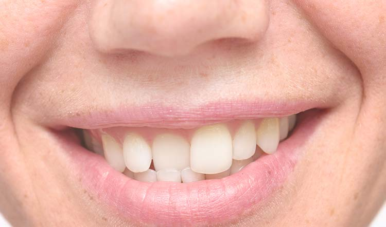 Ortodoncia para corregir un solo diente