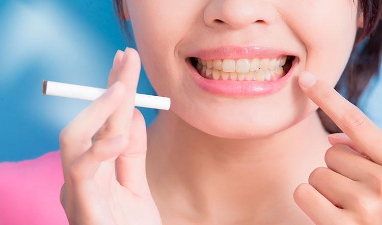 blanqueamiento-dental-fumadores
